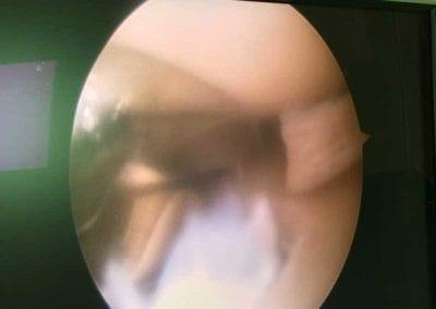 Αρθροσκόπηση γόνατος - Οστεοχονδρίτιδα
